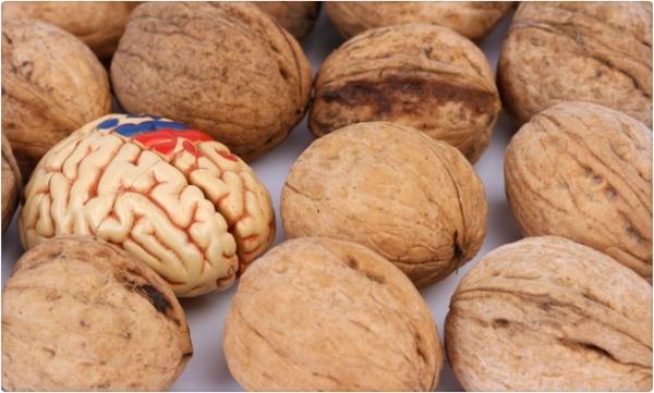 1_cerebro_comida