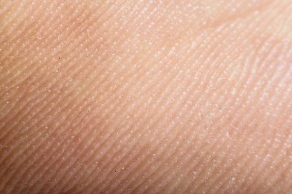 5-senales-de-la-piel-que-indican-problemas-en-el-cuerpo