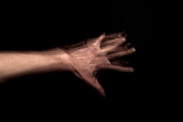 Conoce-la-curiosa-historia-de-la-mujer-con-sindrome-del-Dr-Strangelove-que-fue-atacada-por-su-propia-mano