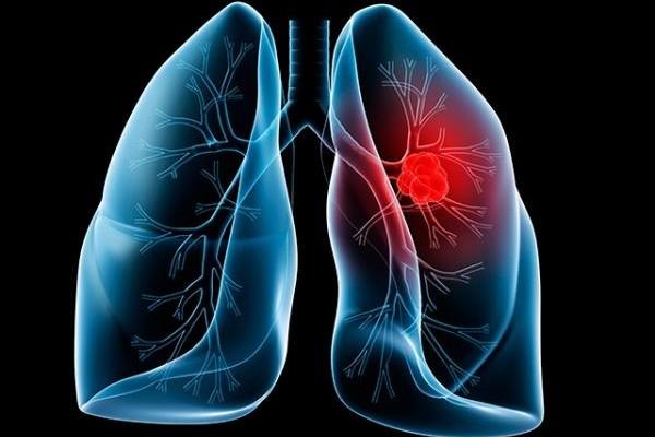 cáncer_pulmón_ResinClub