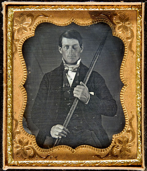 ONE TIME USE ONLY A daguerreotype image believed to be of railway worker Phineas Gage holding a tamping iron that went through his head during an explosion on a worksite in 1848. (Mandatory credit: Daguerreotype by Jack Wilgus from the collection of Jack and Beverly Wilgus)
